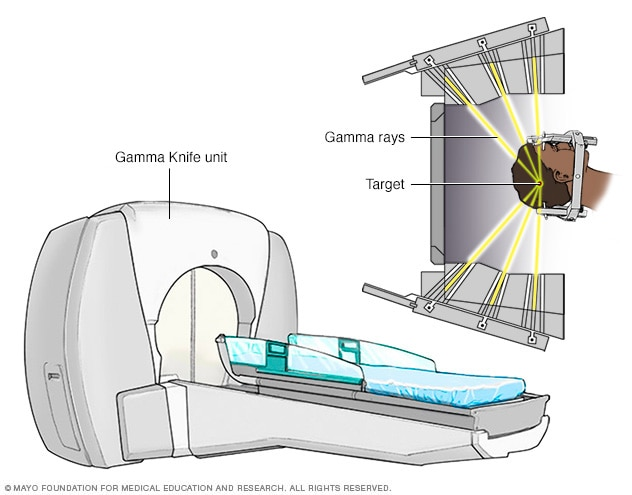 Gamma Knife stereotactic radiosurgery unit
