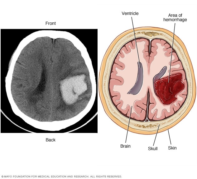 Subarachnoid Hemorrhage Vs Intracerebral Hemorrhage