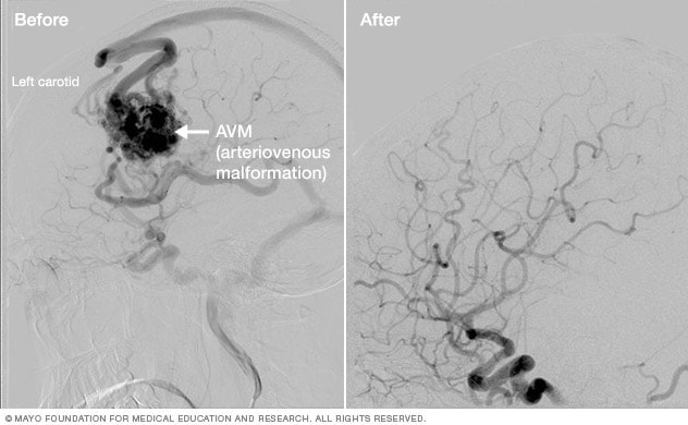Brain arteriovenous malformation before and after Gamma Knife treatment