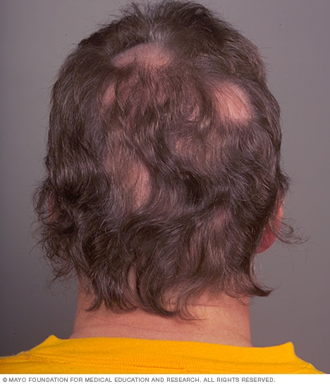 Photograph showing patchy hair loss (alopecia areata)
