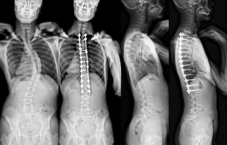 Images of adolescent boy with spinal curvature of 50 degrees