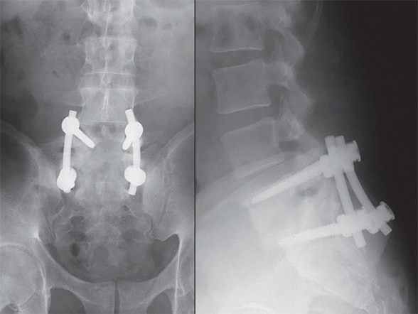 Image of implant-associated spine infection with failure of fixation, deformity and osteomyelitis