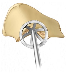 Images of acetabular reconstruction with highly porous metals and augments