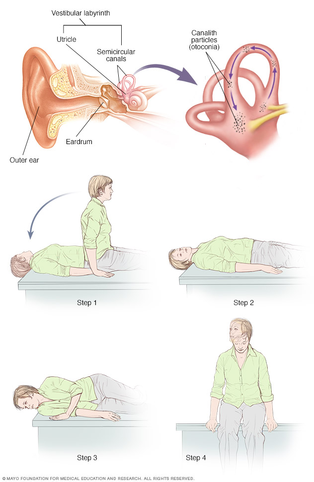 Illustration showing canalith repositioning