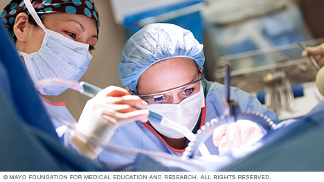 Photo of Mayo Clinic surgeons in operating room