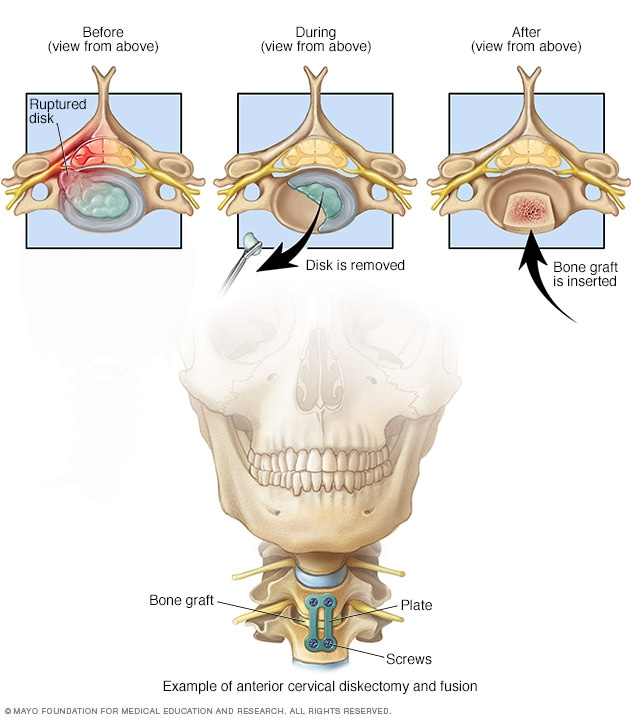 Illustration showing hardware used to fuse spine from front of neck.