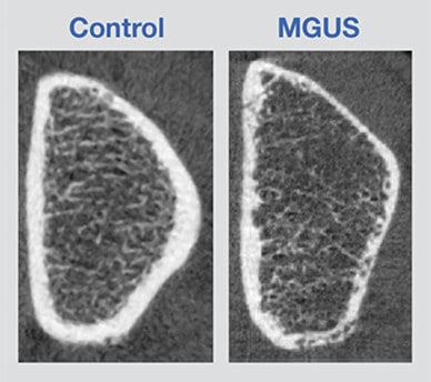 Graphic showing HRpQCT images of bone in control and patient with MGUS