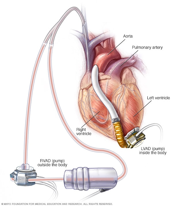 Right and left ventricular assist device