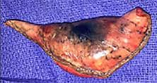 Complete resection of the lesion