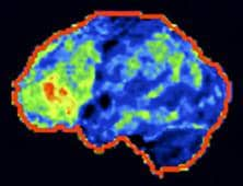 FDG-PET scan after long-standing traumatic injury