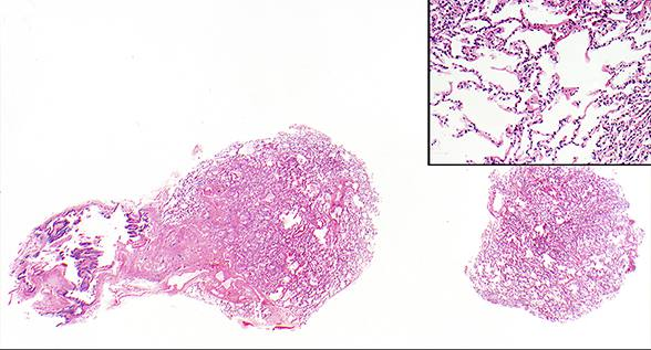 Lung allograft showing well-expanded alveoli