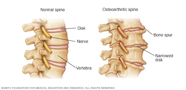 Illustration showing osteoarthritis of the spine