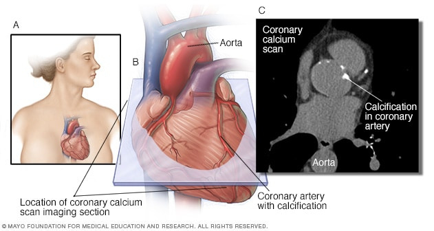coronary calcium scan