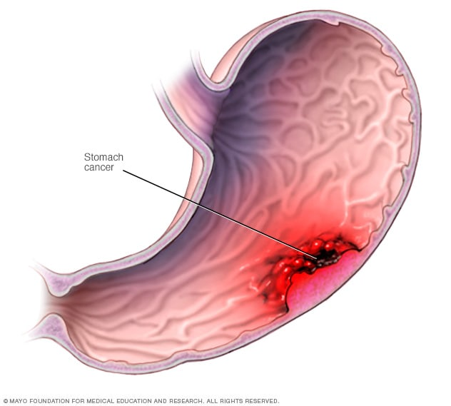 Illustration of stomach cancer