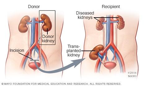 Kidney Transplant Travel Insurance