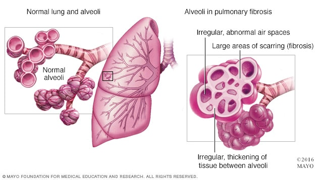 Illustration of pulmonary fibrosis